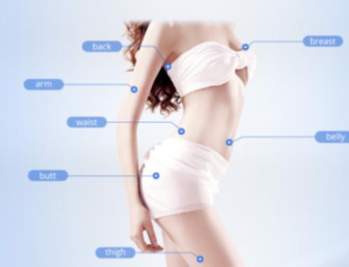 Liposonix – neinvazivní přístrojová liposukce